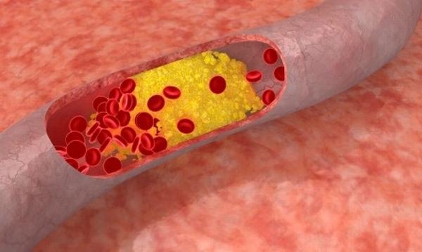 Как предотвратить атеросклероз сосудов