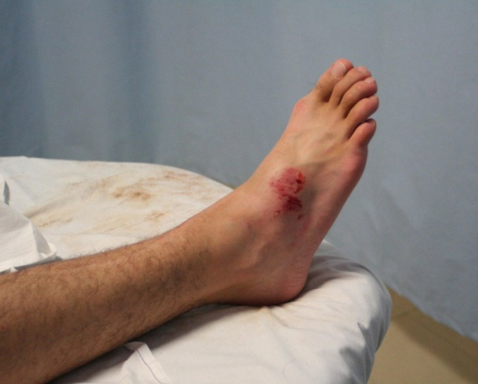 Картинки пробитая ногах