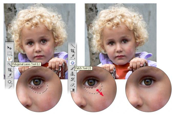 Как убрать синяки под глазами в <em>фотошопе</em>
