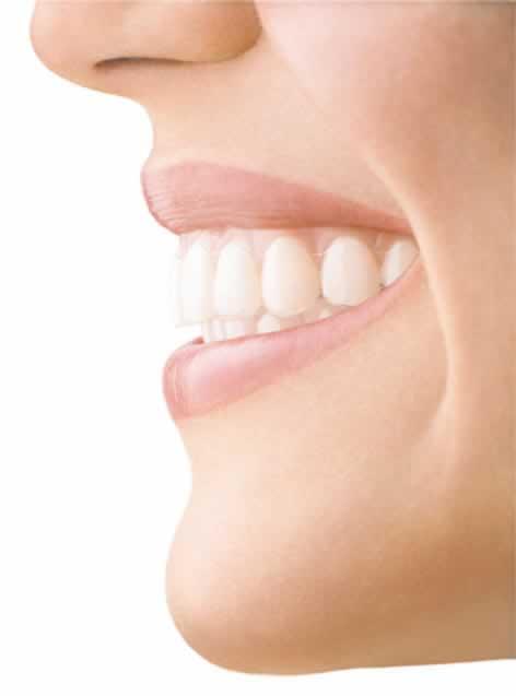 Как выровнять зуб без брекетов
