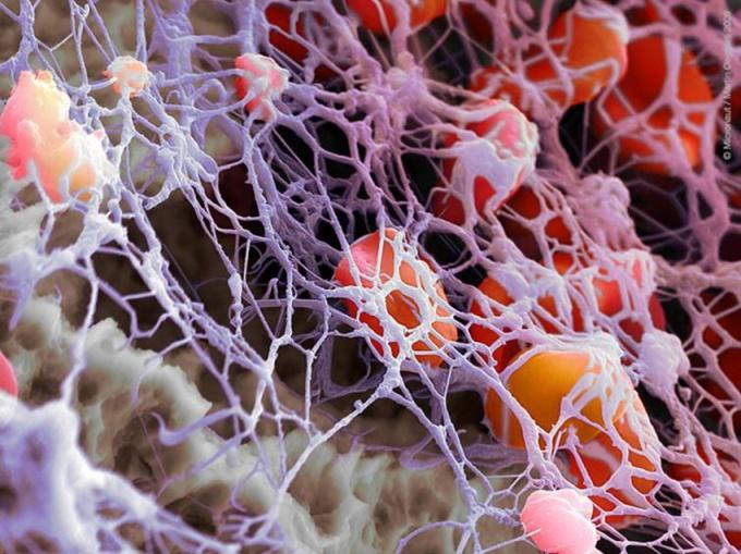 Как повысить уровень тромбоцитов