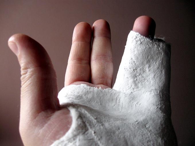 Immobilizing plaster bandage