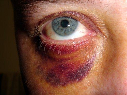 Укрепляйте кровеносные сосуды и избегайте ушибов.