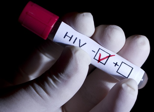 How to know the AIDS or not