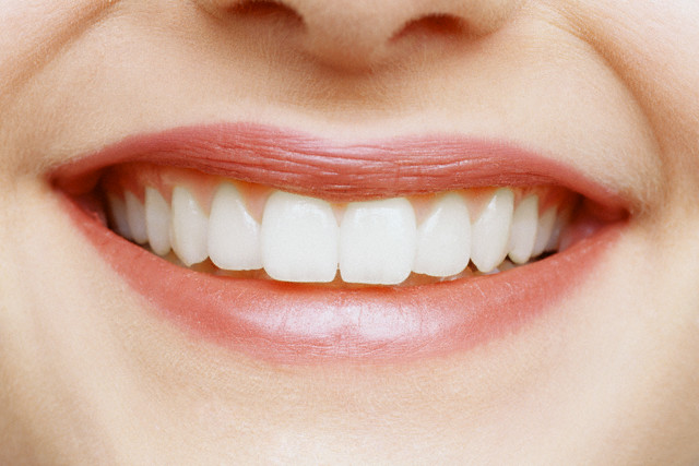 How to remove the gap between the <b>front</b> <em>teeth</em>