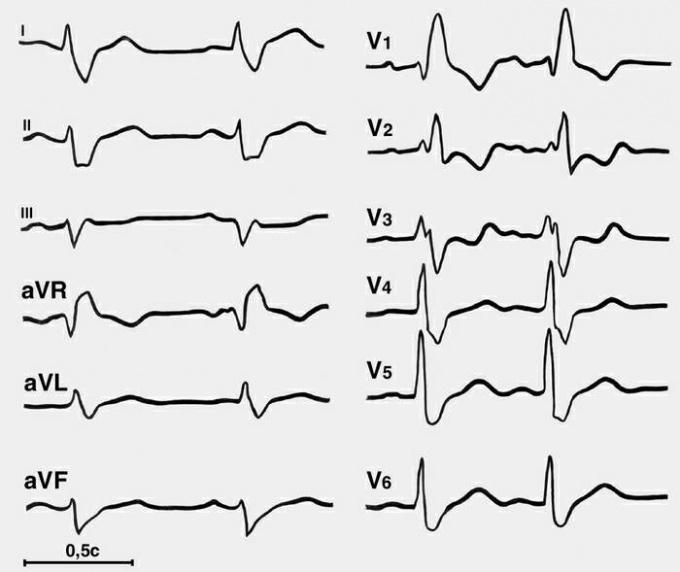 Как читать <strong>кардиограмму</strong>