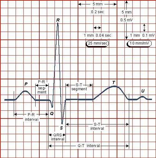 Как читать кардиограмму