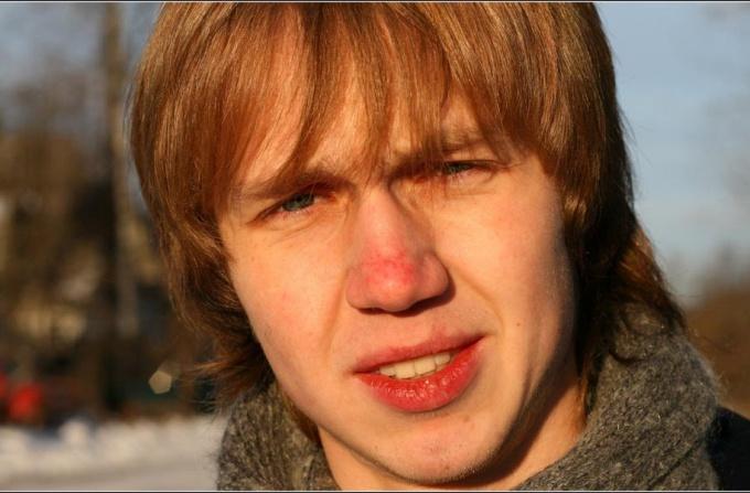 Как убрать красноту с носа