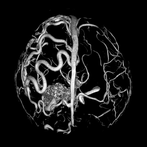 How to expand blood vessels of the brain