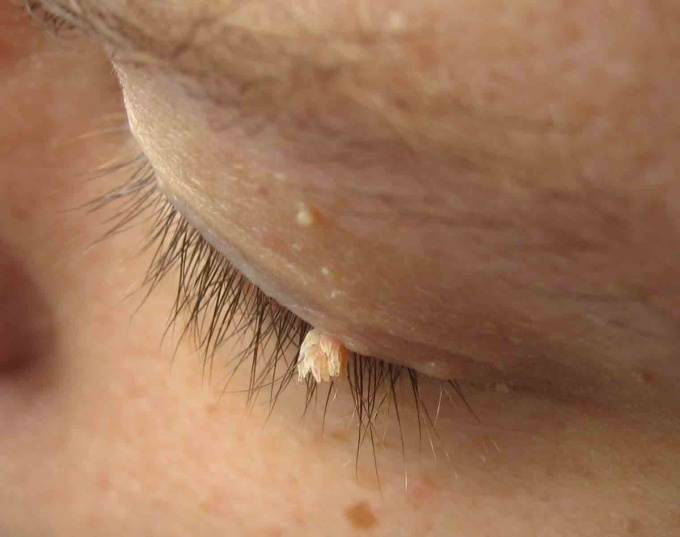 How to remove warts on the face