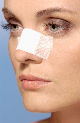 Ринопластика - самая востребованная косметическая операция