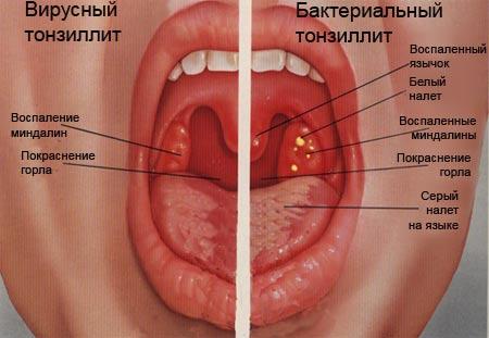 Как лечить першение в горле