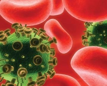 Как распознать СПИД