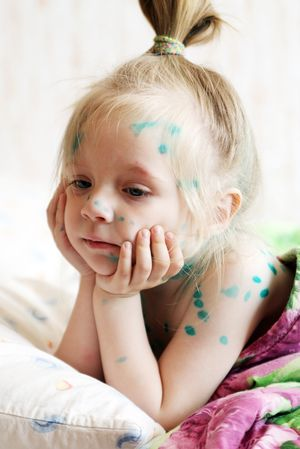 Most often, chickenpox sick children.