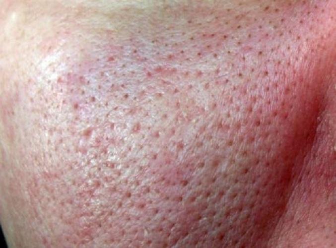 So look enlarged pores