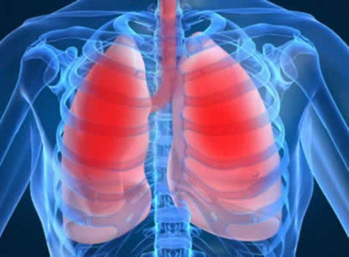 Как лечить бронхопневмонию