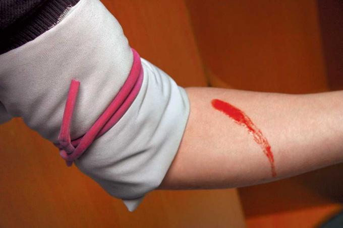 Как остановить артериальное кровотечение
