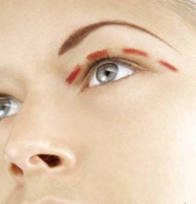 How to tighten the skin around the eyes
