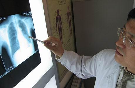 Как определить рак легких