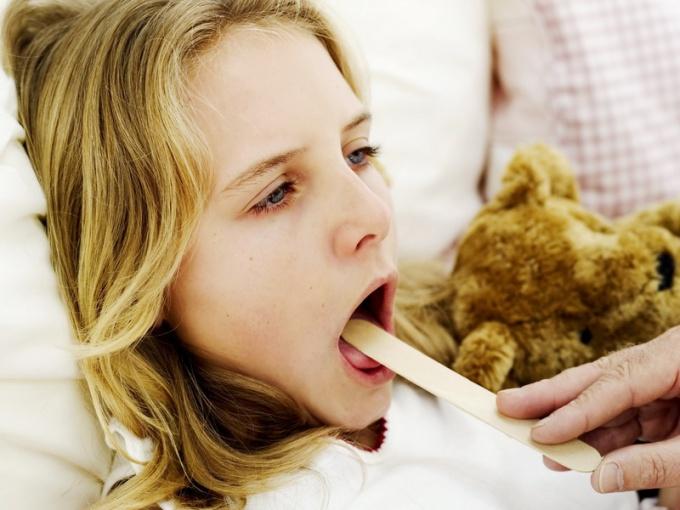 Ангина - распространенное заболевание у детей.