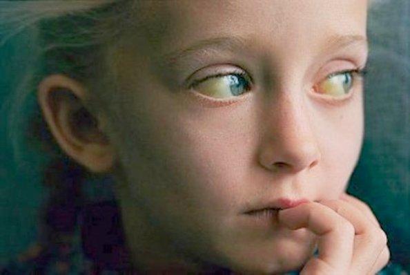 заболевания печени вызывают пожелтение склеры глаз