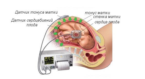 Выслушивание сердца с помощью кардиотокографии