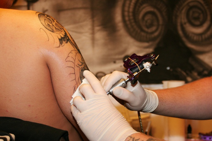 How to get rid of tattooing