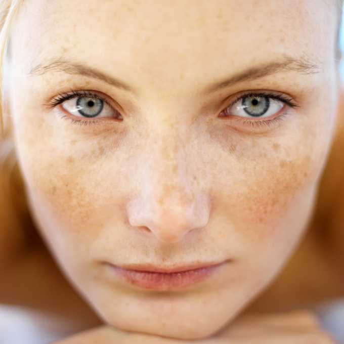 How to get rid of dark spots from acne
