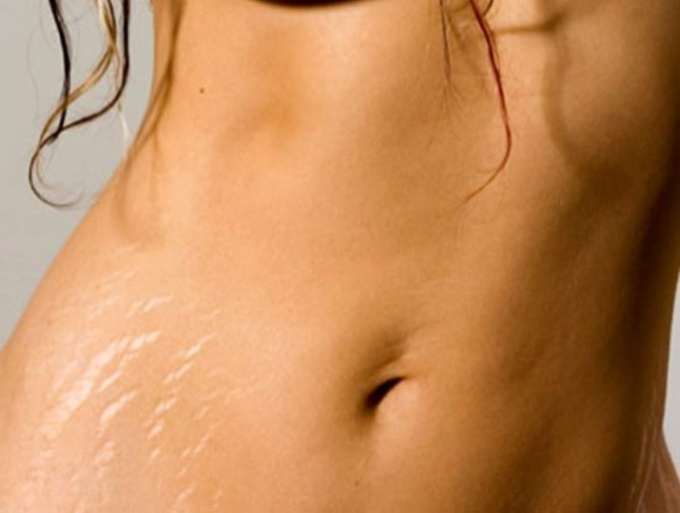 How to get rid of old stretch marks