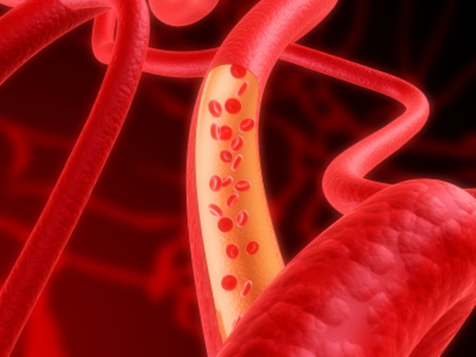 How to treat elevated hemoglobin