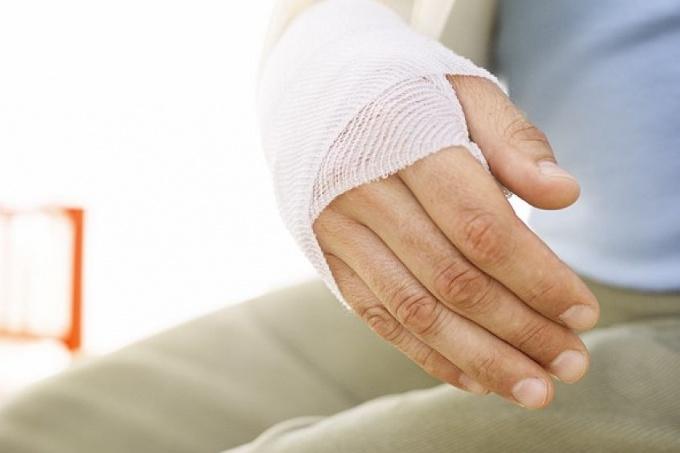 How to treat a sprain hand