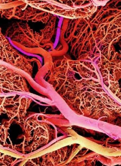 как почистить сосуды от холестерина