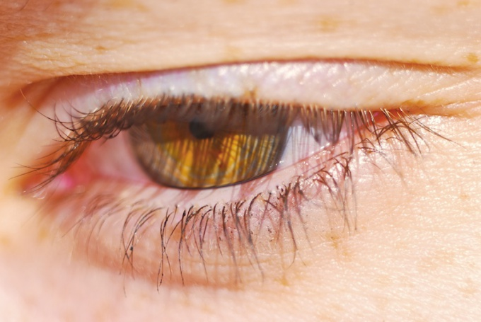 How to lay ointment for eyelid