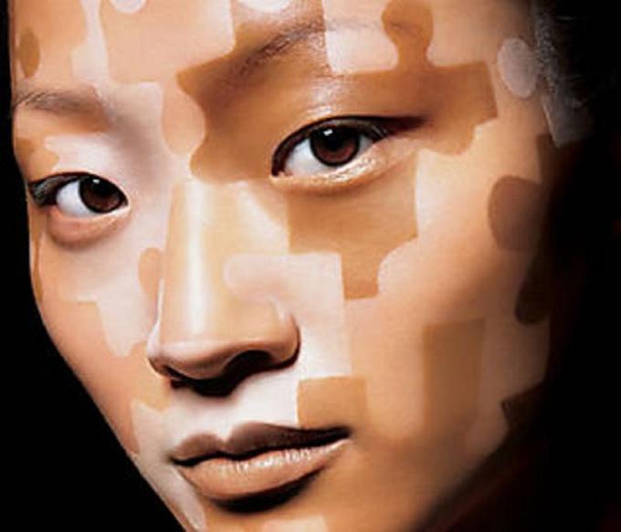 Как избавиться от белых пятнышек на коже