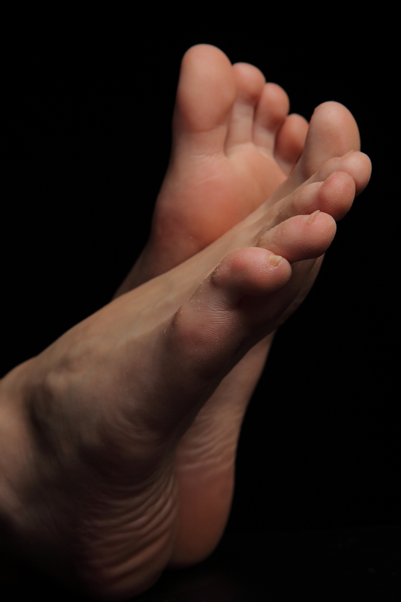 Как удалить шишки на ногах