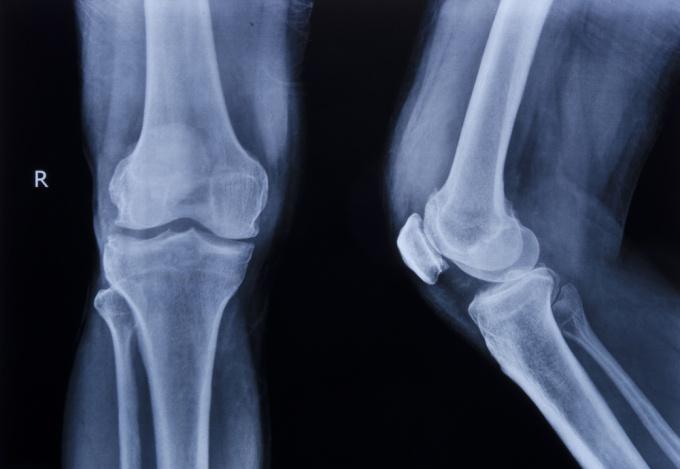 Рекомендации до начала лечения суставов