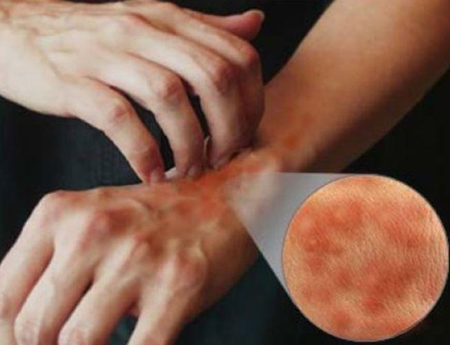Болезнь обычно начинается через несколько недель после воздействия пускового фактора, которым служит инфекционное
