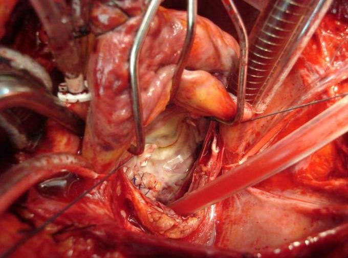 Как лечить пролапс клапана