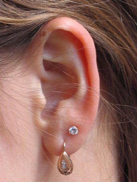 How to treat earlobe