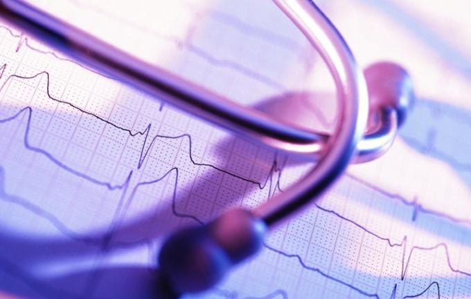 Как лечить мерцательную аритмию