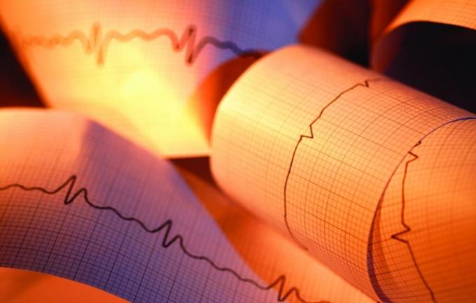 As a cardiogram
