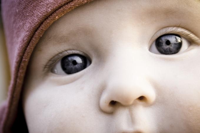 Как лечить конъюнктивит у детей