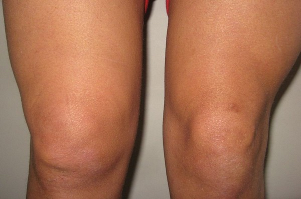 How to remove fluid in the knee