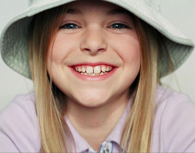 Как отличить коренной зуб от молочного