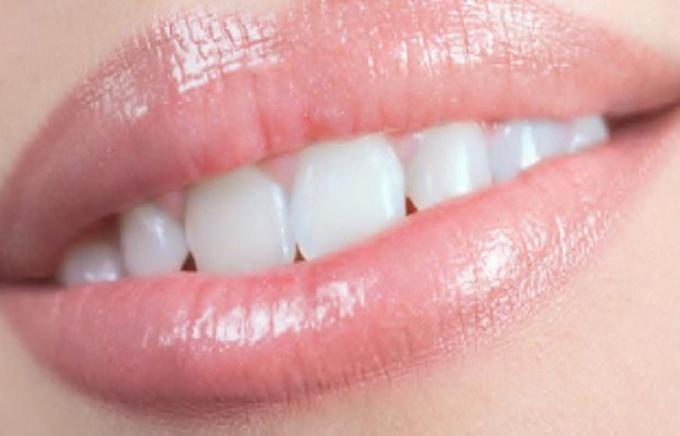 Как избавиться от черного налета на зубах