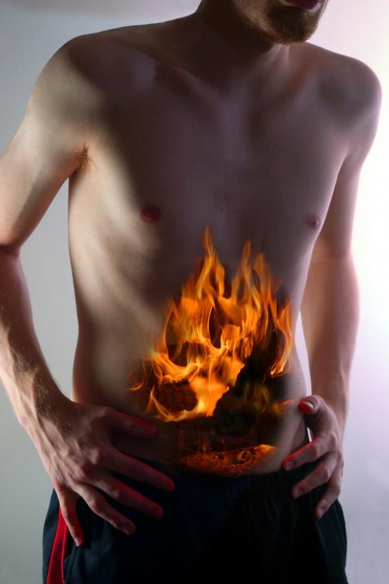 Как устранить изжогу