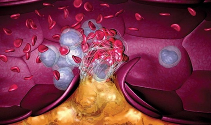 Как лечить тромб