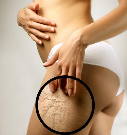 Как убрать растянутую кожу