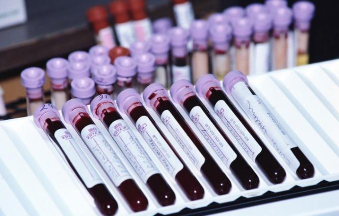 Когда нужно сдавать кровь на беременность
