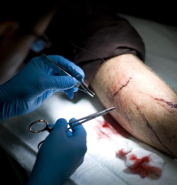 Как лечить резаные раны